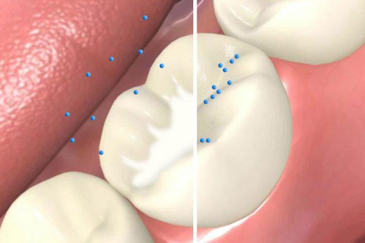 فیشورسیلانت یا شیارپوش دندان برای کودکان