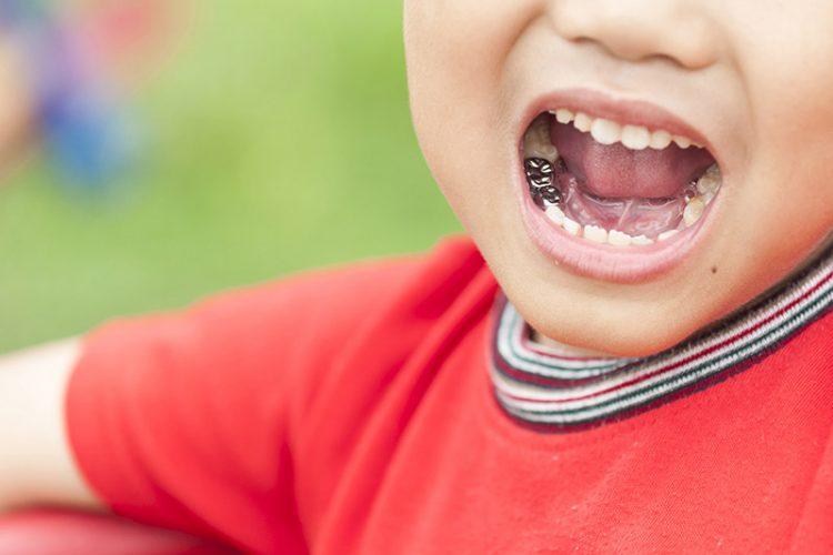 روکش دندان شیری