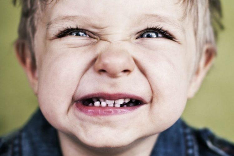 دندان قروچه در کودکان
